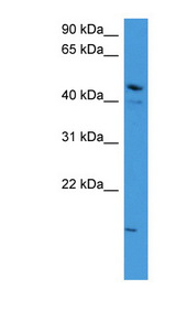 ZNF713 Antibody - ZNF713 antibody Western blot of OVCAR-3 cell lysate. This image was taken for the unconjugated form of this product. Other forms have not been tested.