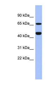 ZNF713 antibody LS-C110477 Western blot of Fetal Spleen lysate.  This image was taken for the unconjugated form of this product. Other forms have not been tested.