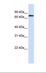 ZNF714 Antibody - Fetal muscle lysate. Antibody concentration: 1.0 ug/ml. Gel concentration: 12%.  This image was taken for the unconjugated form of this product. Other forms have not been tested.