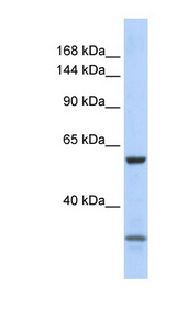 ZNF777 antibody Western blot of 721_B cell lysate. This image was taken for the unconjugated form of this product. Other forms have not been tested.