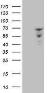 ZNF79 Antibody - HEK293T cells were transfected with the pCMV6-ENTRY control. (Left lane) or pCMV6-ENTRY ZNF79. (Right lane) cDNA for 48 hrs and lysed. Equivalent amounts of cell lysates. (5 ug per lane) were separated by SDS-PAGE and immunoblotted with anti-ZNF79. (1:2000)