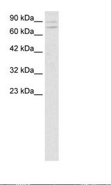 ZNF81 Antibody - Jurkat Cell Lysate.  This image was taken for the unconjugated form of this product. Other forms have not been tested.