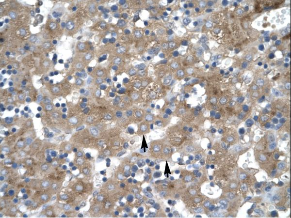 ZNF81 Antibody - ZNF81 antibody ARP31985_T100-ZNF81 (zinc finger protein 81) Antibody was used in IHC to stain formalin-fixed, paraffin-embedded human liver.  This image was taken for the unconjugated form of this product. Other forms have not been tested.