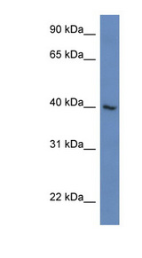 ZNF821 Antibody - ZNF821 antibody Western blot of Jurkat lysate. This image was taken for the unconjugated form of this product. Other forms have not been tested.