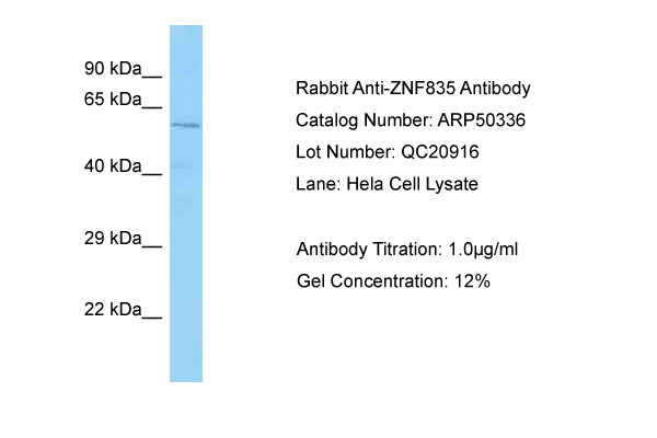 ZNF835 Antibody -  This image was taken for the unconjugated form of this product. Other forms have not been tested.