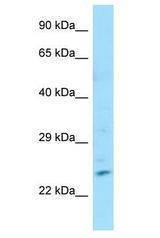 ZNF846 antibody Western Blot of Fetal Small Intestine. Antibody dilution: 1 ug/ml.  This image was taken for the unconjugated form of this product. Other forms have not been tested.
