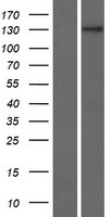 ZNF862 Protein - Western validation with an anti-DDK antibody * L: Control HEK293 lysate R: Over-expression lysate