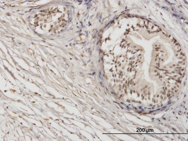 Immunoperoxidase of monoclonal antibody to ZNF92 on formalin-fixed paraffin-embedded human prostate. [antibody concentration 1.2 ug/ml]
