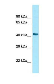 ZNHIT2 Antibody - Western blot of Human Fetal Stomach . ZNHIT2 antibody dilution 1.0 ug/ml.  This image was taken for the unconjugated form of this product. Other forms have not been tested.