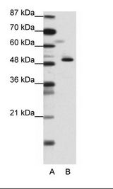 ZPR1 / ZNF259 Antibody - A: Marker, B: Jurkat Cell Lysate.  This image was taken for the unconjugated form of this product. Other forms have not been tested.