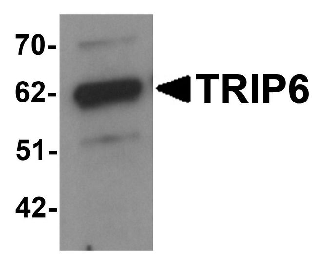 ZRP-1 / TRIP6 Antibody - Western blot analysis of TRIP6 in EL4 cell lysate with TRIP6 antibody at 1 ug/ml.