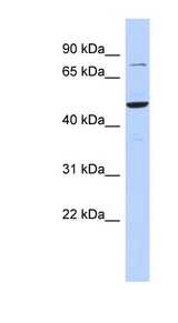 ZSCAN1 / MZF-1 Antibody - ZSCAN1 antibody Western blot of 721_B cell lysate. This image was taken for the unconjugated form of this product. Other forms have not been tested.