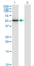 ZSCAN21 / Zipro1 Antibody - Western Blot analysis of ZSCAN21 expression in transfected 293T cell line by ZNF38 monoclonal antibody (M08), clone 4B11.Lane 1: ZSCAN21 transfected lysate (Predicted MW: 53.7 KDa).Lane 2: Non-transfected lysate.