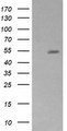 HEK293T cells were transfected with the pCMV6-ENTRY control (Left lane) or pCMV6-ENTRY ZSCAN21 (Right lane) cDNA for 48 hrs and lysed. Equivalent amounts of cell lysates (5 ug per lane) were separated by SDS-PAGE and immunoblotted with anti-ZSCAN21.