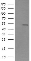 ZSCAN21 / Zipro1 Antibody - HEK293T cells were transfected with the pCMV6-ENTRY control (Left lane) or pCMV6-ENTRY ZSCAN21 (Right lane) cDNA for 48 hrs and lysed. Equivalent amounts of cell lysates (5 ug per lane) were separated by SDS-PAGE and immunoblotted with anti-ZSCAN21.