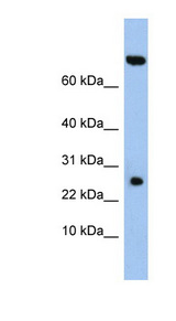 ZSWIM3 Antibody - ZSWIM3 antibody Western blot of DU145 cell lysate. This image was taken for the unconjugated form of this product. Other forms have not been tested.