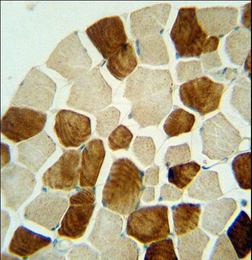 ZSWIM6 antibody immunohistochemistry of formalin-fixed and paraffin-embedded human skeletal muscle followed by peroxidase-conjugated secondary antibody and DAB staining.